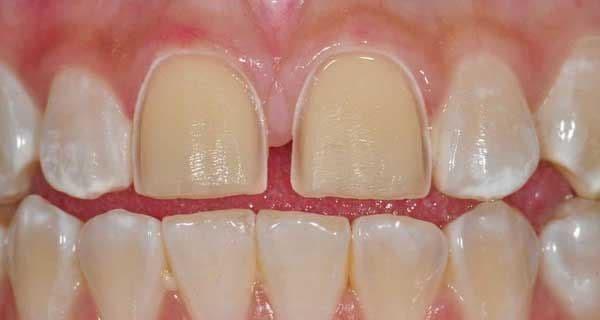 برداشتن کامپوزیت دندان از طریق پیوند دندان