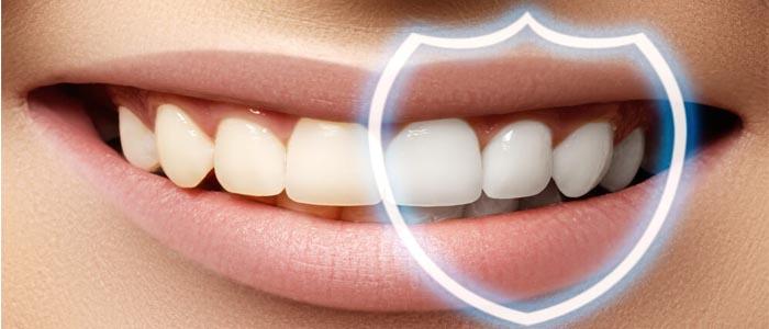 هزینه پالیش کامپوزیت دندان متفاوت است