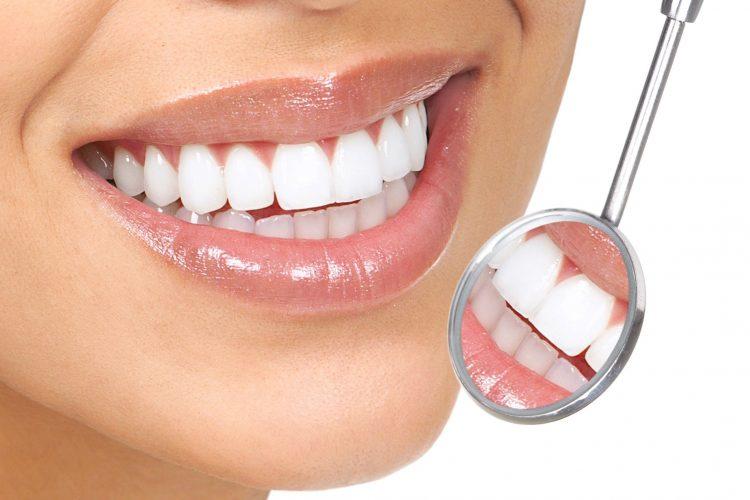 هزینه پالیش دندان چقدر است؟