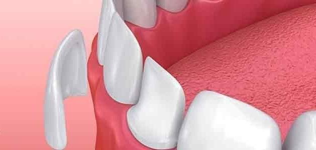 رزین کامپوزیت و برداشتن کامپوزیت دندان