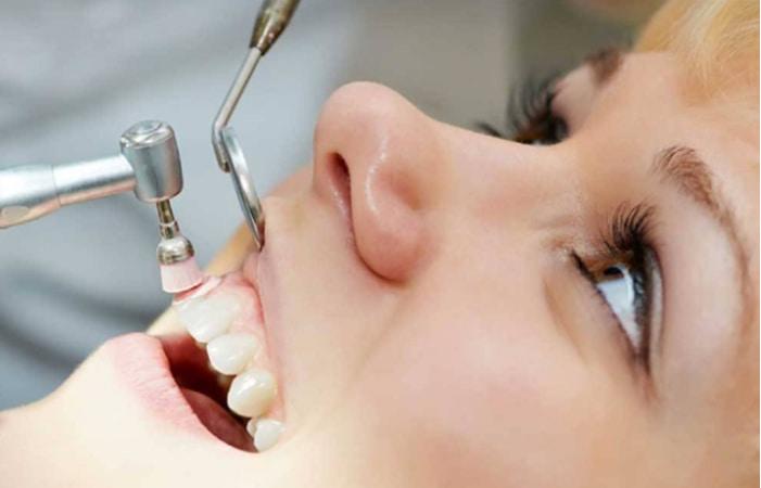تجزیه و تحلیل هزینه مواد مورد استفاده در ترمیم های پالیش کامپوزیت دندان: