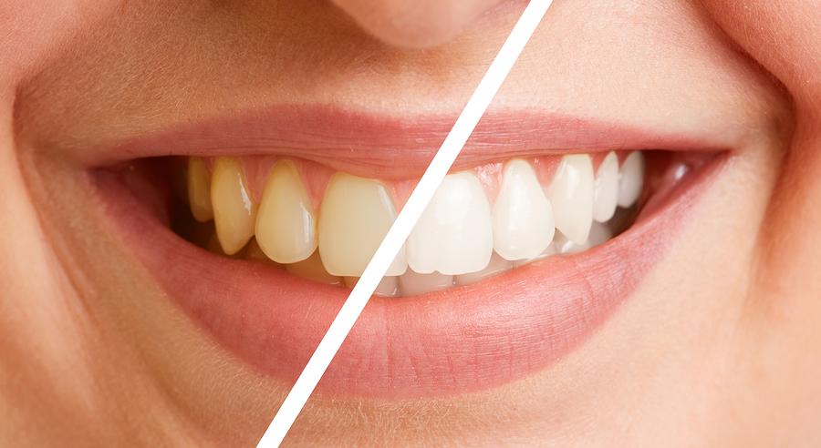 رزین های کامپوزیت دندان:
