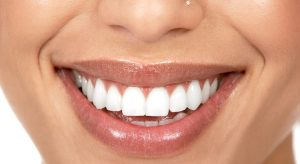 برداشتن كامپوزيت دندان