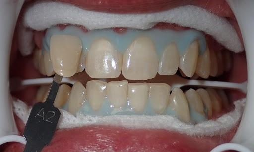آیا تغییر رنگ دندان هایی که ناشی از مصرف دخانیات و نیکوتین است با بلیچینگ قابل درمان است؟
