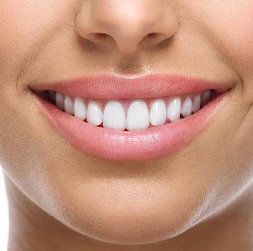 شرح کامل پالیش کامپوزیت دندان و بررسی هزینه ی پالیش کامپوزیت دندان: