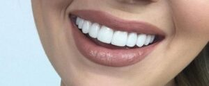هزینه پالیش کامپوزیت دندان