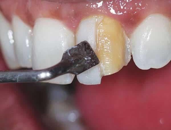 مزایای اصلی برداشتن کامپوزیت دندان