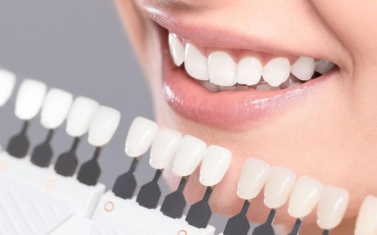 هزینه های مستقیم و غیر مستقیم برای پالیش کامپوزیت دندان: