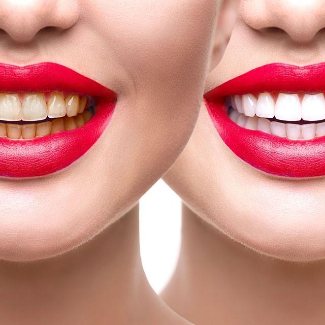 معمولا برای سفید کردن دندان ها چه روش هایی وجود دارد؟