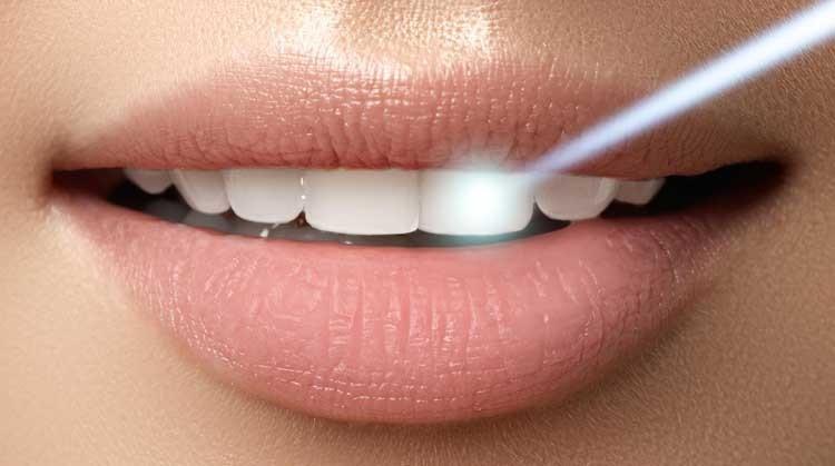 زمان و ماندگاری سفید شدن دندان بعد از بلیچینگ چقدر است؟